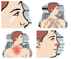 Symtom vid kvalsterallergi
