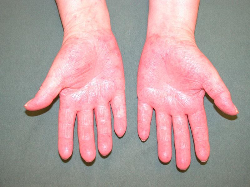 Fler handskar ger mer eksem